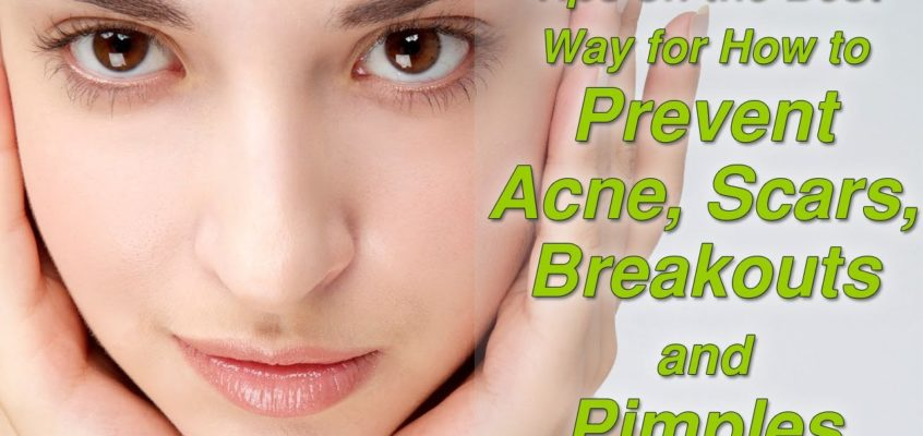 Acne Help – 8 Tips to prevent acne outbreaks